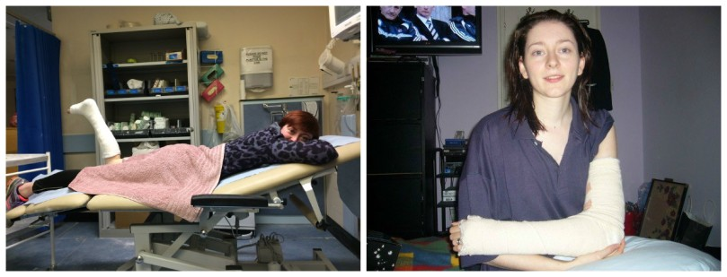 So tired - could easily have dozed off as he applied the cast! My elbow back slab from nine years ago!