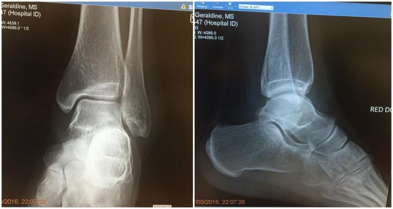 12 x-ray