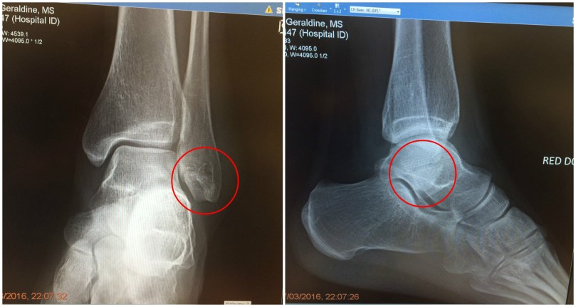 12a x-ray